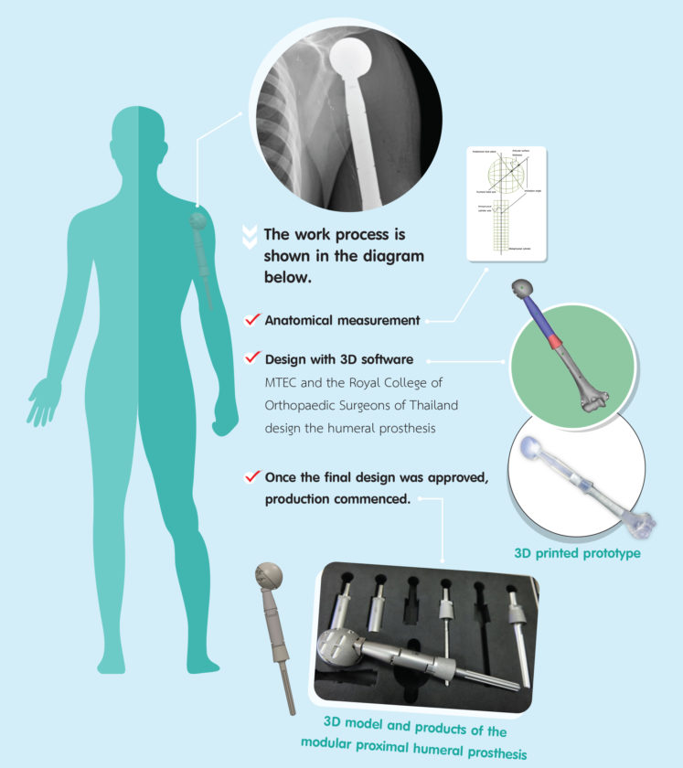 The Proximal Humeral Prosthesis For Bone Tumour Patients Mtec A